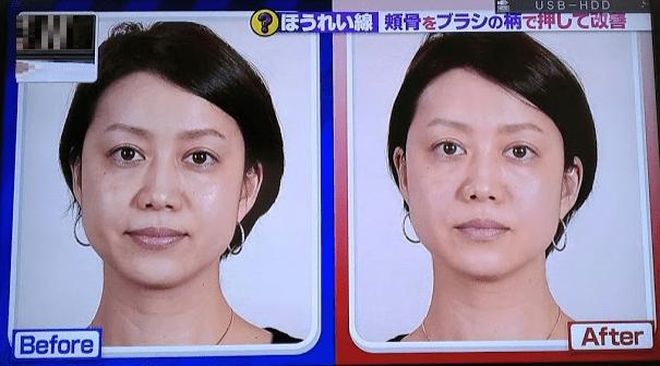頬骨マッサージの効果3