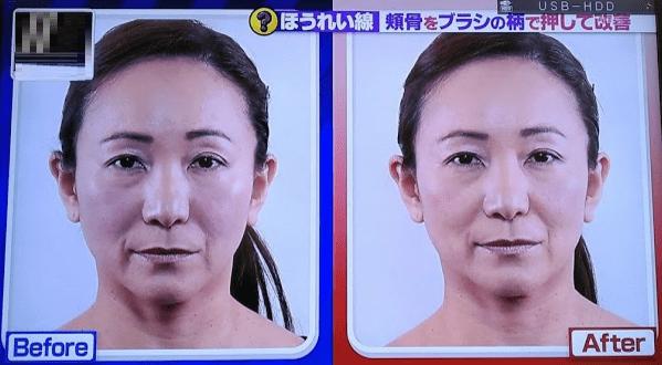 頬骨マッサージの効果5