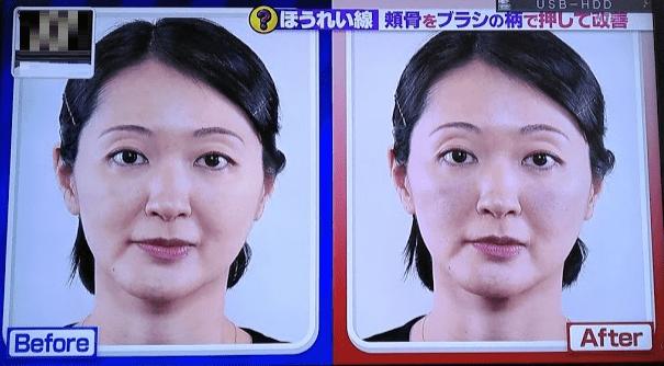 頬骨マッサージの効果4