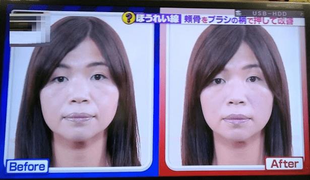 頬骨マッサージの効果1