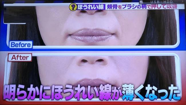 頬骨マッサージの効果2